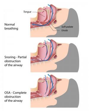 ronquido y apnea
