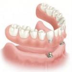 ip63-i-implantes_oseointegrados