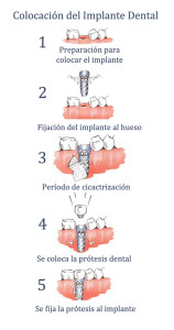 Fases del tratamiento del implante dental