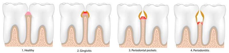 periodoncia_2